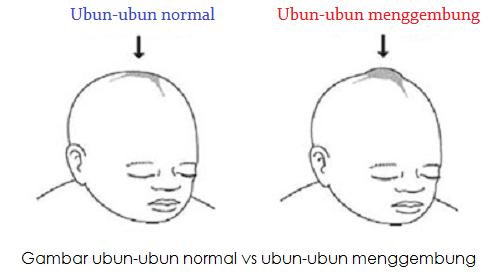 Ubun ubun bayi menonjol, Ubun ubun bayi menggembung